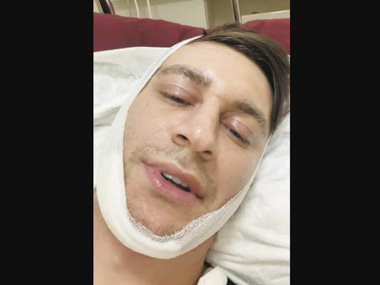 Хирург рассказал о проблемах Давы: не мог обойтись без операции