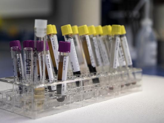 Американские учёные обнаружили, что люди со второй группой крови имеют больший риск заражения коронавирусом, об этом говорится в журнале Американского общества гематологии Blood Advances
