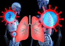 76 человек в Удмуртии заболели коронавирусо за сутки