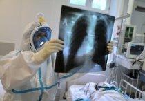 Ученые предупредили: коронавирус может спровоцировать опасные болезни