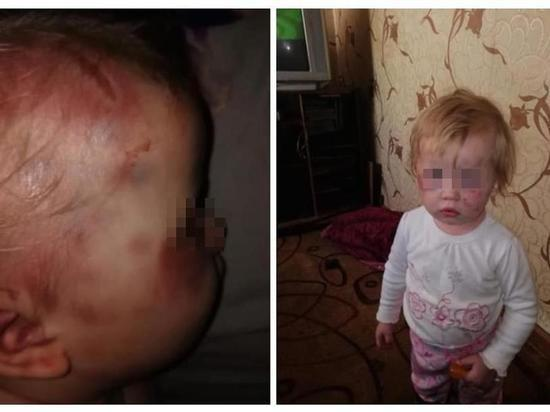 Мать избитого под Рязанью малыша лишили родительских прав на обоих детей