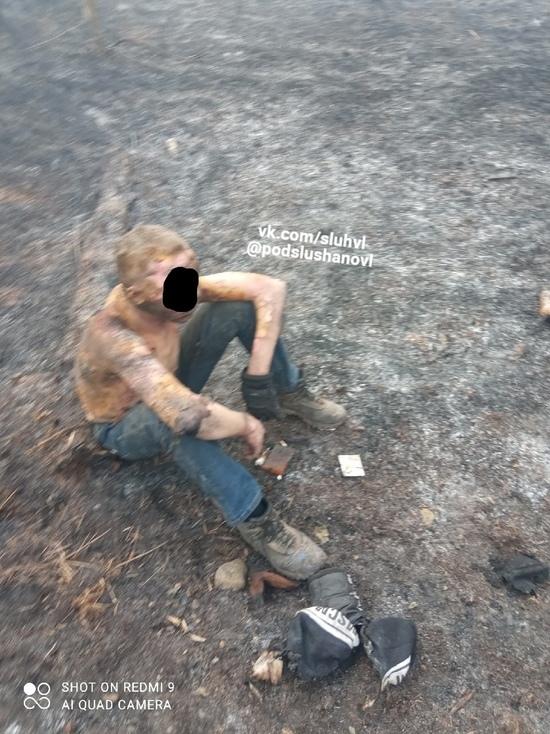 Бездомный едва не сгорел в Великих Луках из-за пала травы