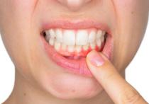 Заболевания пародонта, или тканей, которые окружают зуб и удерживают его на своем месте, — это проявление системного нарушения, которое не всегда напрямую связано с состоянием полости рта