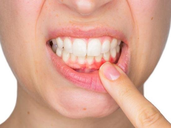 Курение может оставить без зубов