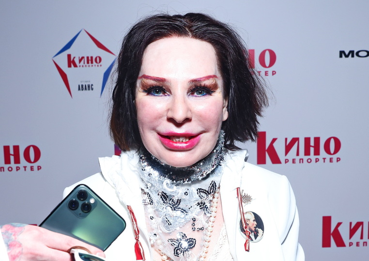 Жанна Агузарова после пластики стала выглядеть странно