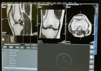 Телеведущий, главврач московской больницы Александр Мясников рассказал о способах предотвратить развитие опасного заболевания, от которого в мире страдают каждая третья женщина и каждый пятый мужчина старше 50 лет