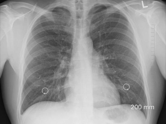 Онколог назвал главный симптом предракового состояния легких