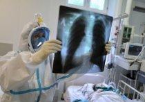 Доктор биологических наук, профессор Школы системной биологии Университета Джорджа Мейсона (Вирджиния, США) Анча Баранова, проанализировав работу ученых из Мичигана, дала новую трактовку возможностям иммунитета против COVID-19