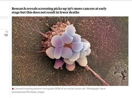 В Университетском колледже Лондона рассказали об обследованиях при раке яичников