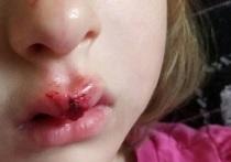 В Челябинске пятилетняя девочка разбила лицо, катаясь на самокате
