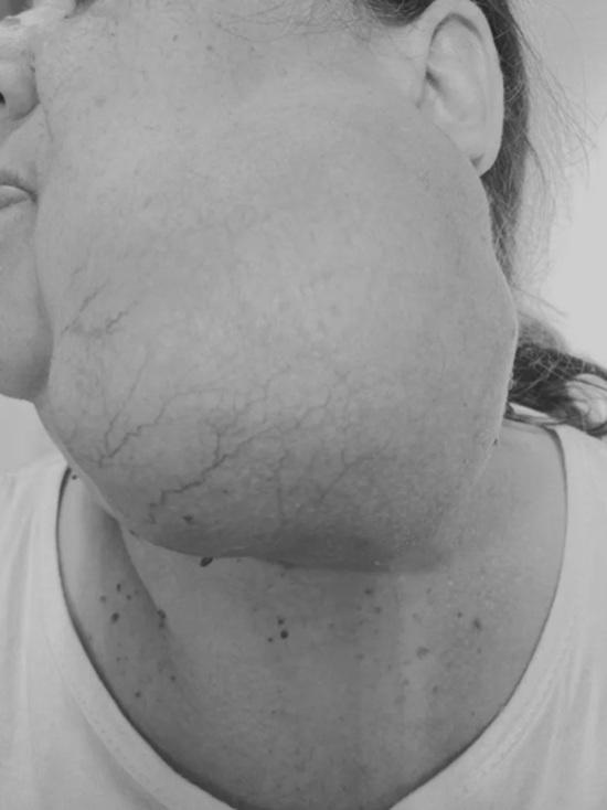 Врачи в Красноярске удалили с лица пациентки опухоль весом 1,5 кг