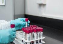 Бывшая заведующая сектором украинского Государственного научно-контрольного института биотехнологий и штаммов микроорганизмов похитила с места работы особо опасные биообразцы вирусов