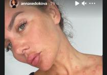 Украинская певица, бывшая солистка группы «ВИА Гра» Анна Седокова показала подписчикам свое лицо, которое изменилось из-за перенесенной болезни