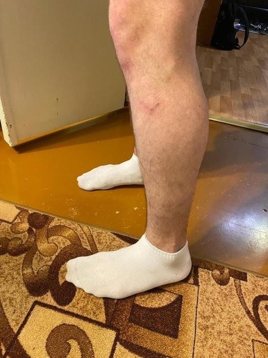 Искусали ноги: стая бродячих псов набросилась на мужчину с ребенком в Лабытнанги. Фото