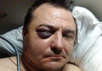 В Сочи был избит экс-солист группы «Лесоповал» Руслан Казанцев