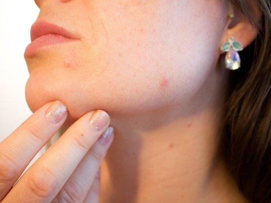 Дерматолог предупредил о смертельной опасности выдавливания прыщей на лице