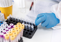 За неделю псковский медцентр «Профессор» взял 136 анализов на COVID-19