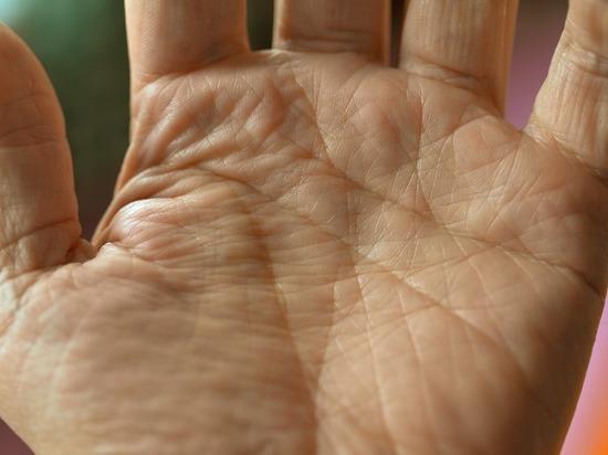 Express: симптомы на руках могут говорить о болезни печени
