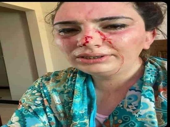 Дочь посла Афганистана в Пакистане была похищена и подвергнута пыткам
