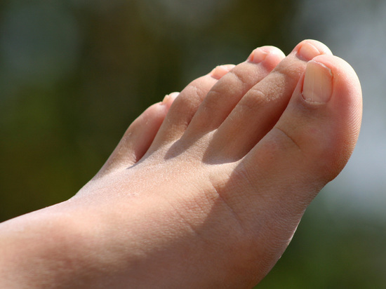 Назван признак повышенного холестерина, заметный на ногах