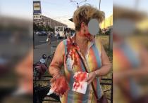 Агрессивная мать проломила петербурженке голову самокатом