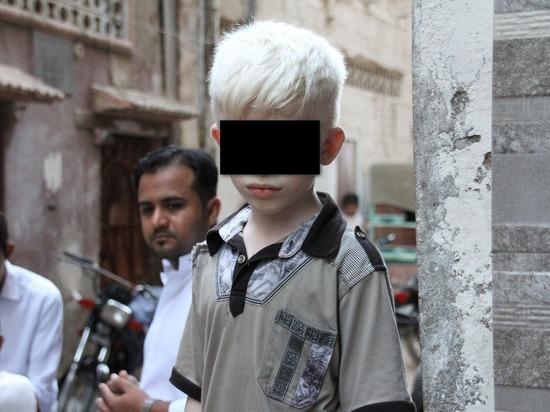 Возросло убийство людей с альбинизмом для использования тел в магии