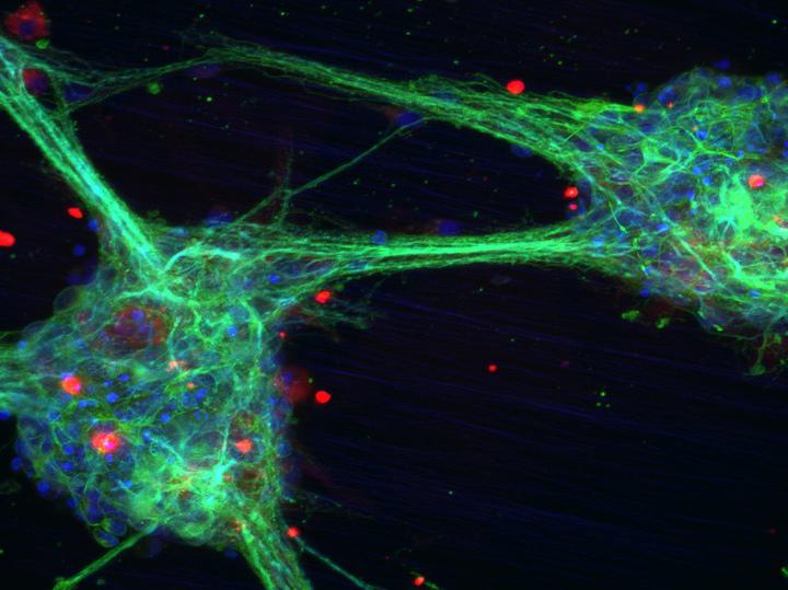 Пущинские биофизики вырастили максимально реалистичный мини-мозг