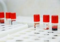 По словам медика, некоторые ученые отмечают более высокую частоту развития рака у носителей I группы крови   − Некоторые авторы научных работ уверены, что люди со II группой крови имеют меньший риск развития рака, − цитируют Серякова «Известия»