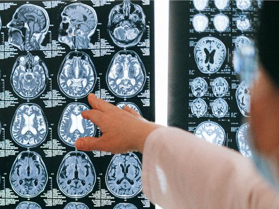 Названы семь продуктов против старения мозга
