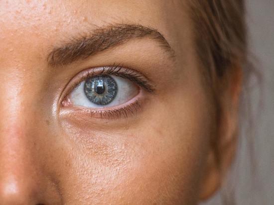 Признаком дефицита D оказалось необычное состояние глаз