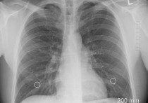 Врачи выявили новый симптом рака, который свидетельствует о злокачественном новообразовании в легких