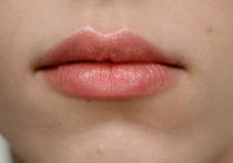 Врач-терапевт Екатерина Терентьева в интервью «Пятому каналу» рассказала о том, о каких опасных заболеваниях могут сигнализировать появившиеся в уголках губ трещинки