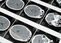 Снизить вероятность когнитивных нарушений и деменции можно с помощью диеты