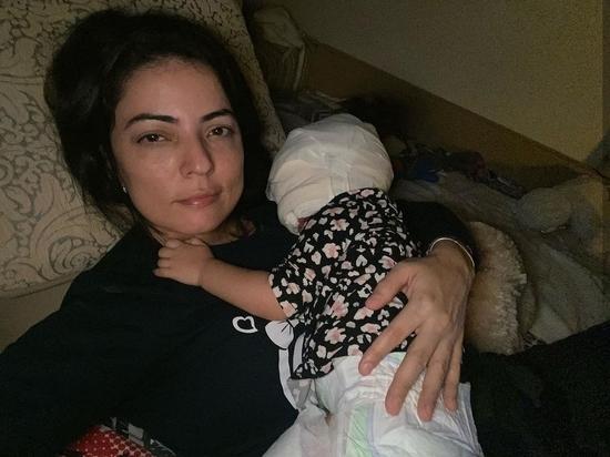 26 октября мама девочки с «маской Бэтмена» Луны Феннер сообщила в своём инстаграм, что малышке успешно провели операцию по пересадке кожи в одной из специализированных клиник Краснодара