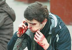 Военные раны в мирное время