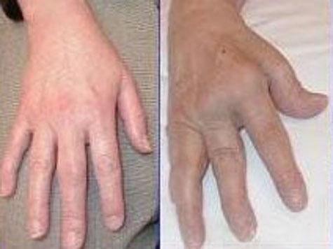 Причины ревматоидного артрита скрываются в кишечнике