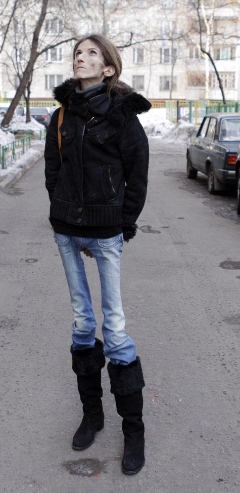 «МК» встретился с москвичкой — одной из самых тощих женщин на земле