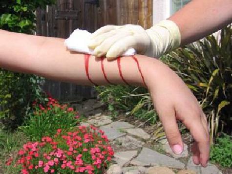 Изобретен уникальный способ остановки кровотечения