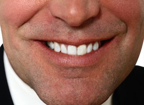 Уникальную операцию по восстановлению нижней челюсти 37-летнему жителю Краснодара провели специалисты клиники челюстно-лицевой хирургии ММА имени И.М.Сеченова