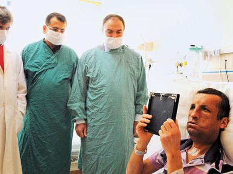 Турок, которому пересадили лицо, впервые увидел себя в зеркале. Фото