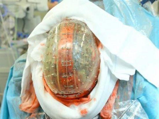 Напечатанный на 3D-принтере череп успешно имплантировали женщине