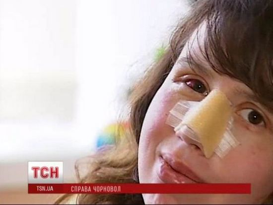Избитая журналистка Чорновил отказывается уходить из больницы