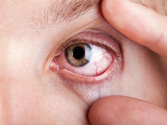 ОРВИ: опасность для глаз
