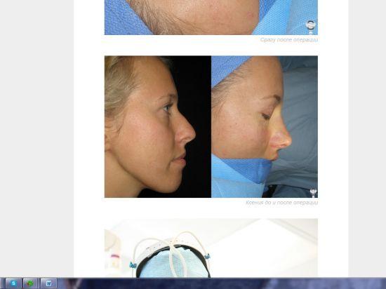 Ксения Собчак сделала в США пластику носа