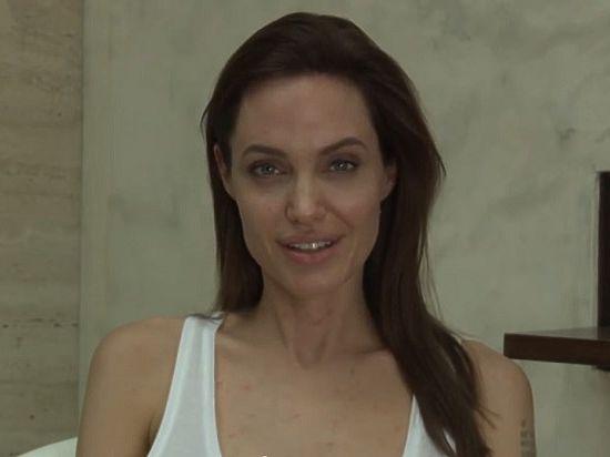 Анджелину Джоли поразила ветряная оспа: актриса выложила свое видео с блямбами