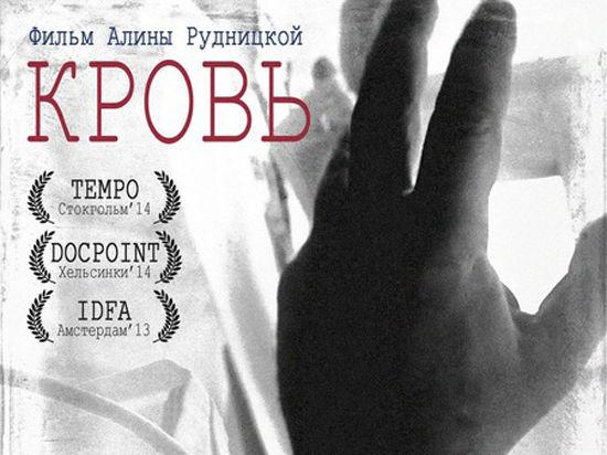 Снимавшиеся в документальном фильме врачи со станции переливания крови уволены с работы