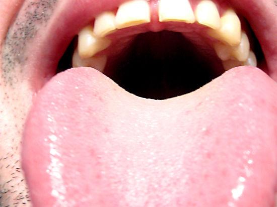 Московские врачи вылечили пациента с синим языком