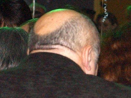 Облысение лечится выдергиванием волос