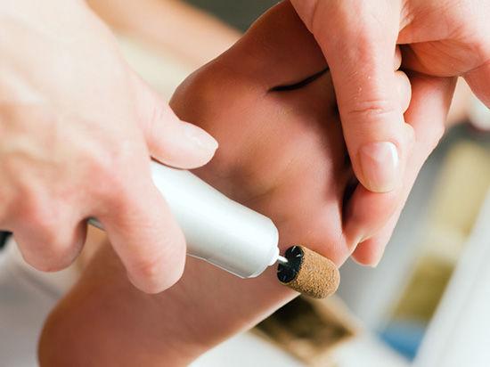 Причины и профилактика вросшего ногтя